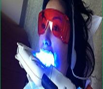 Nên sửa chửa đèn tẩy trắng nha khoa hay mua mới?